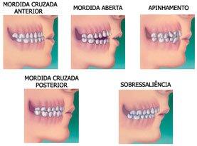 ortodontia_dentes